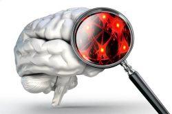 Neurotoxicity adderall