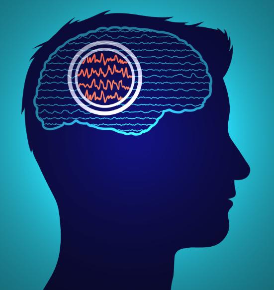 nootropics seizures